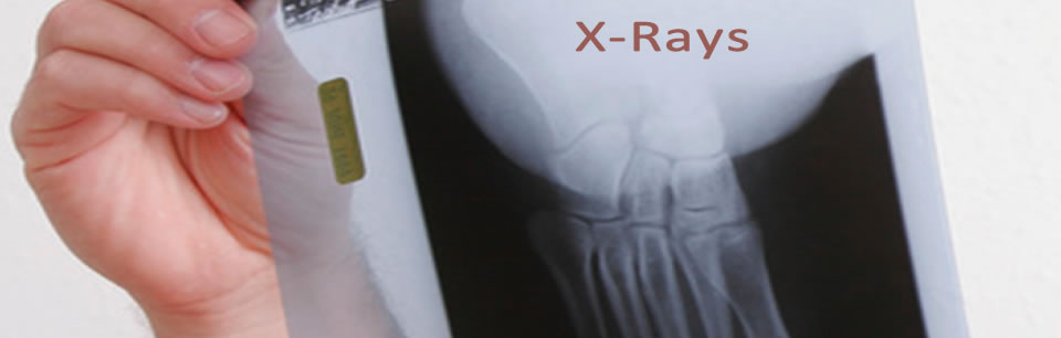 we take xrays right at the clinic for faster results